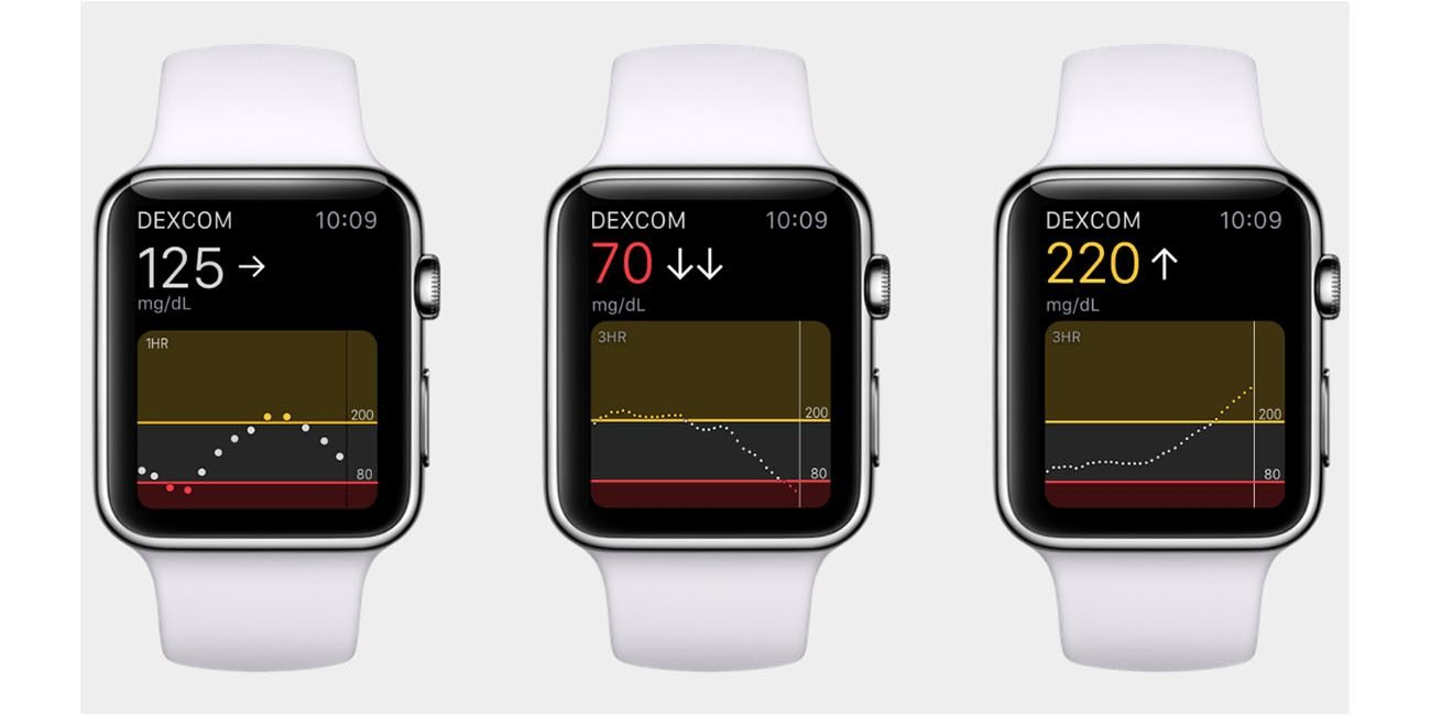 Apple Watch Series 7 expected to have a blood sugar monitor